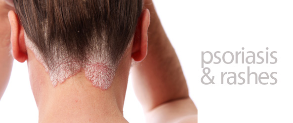 psoriasis & rashes
